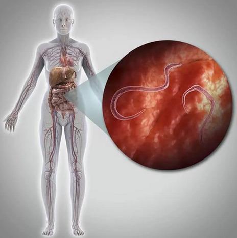 Паразиты в организме: Признаки заражения и способы избавления...