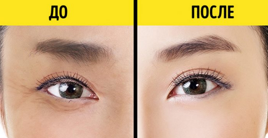 10 вещей, которые ваши глаза пытаются рассказать вам о вашем здоровье...
