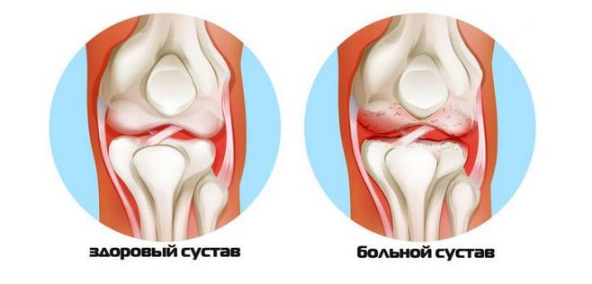 Что делать при артритах и артрозах: золотые советы восточной медицины...