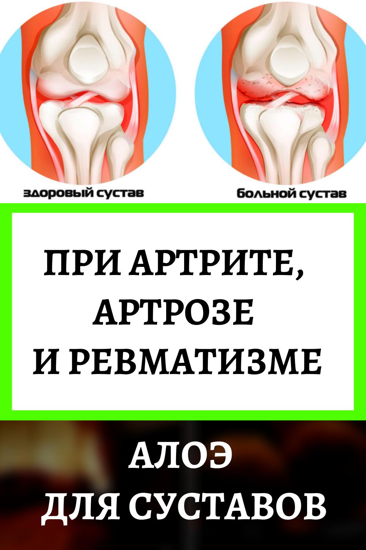 Алоэ для суставов: при артритах, артрозе и ревматизме