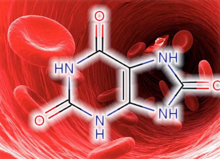 Чем грозит бессимптомный высокий уровень мочевой кислоты